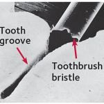 World-Pediatric-Dental-Tooth-Groove-Up-Close