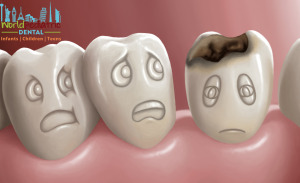 tooth decay world pediatric dental