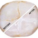 World-Pediatric-Dental-Before-After-Sealant