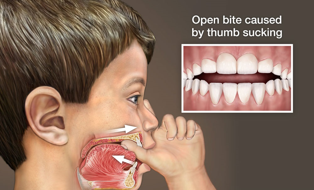 World Pediatric Dental Thumb Sucking